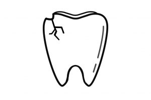 I chipped a Tooth, What can I do?
